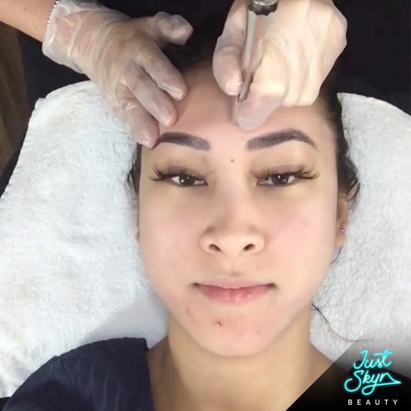 Microdermabrasion Treatment Gold Coast
